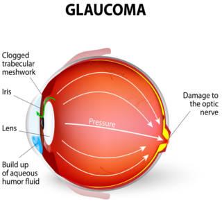 0417 Glaucoma TN