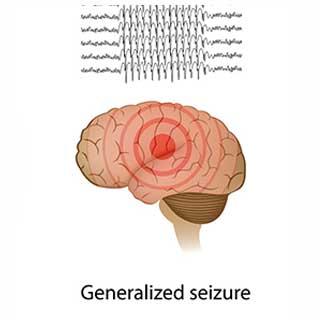 seizure320