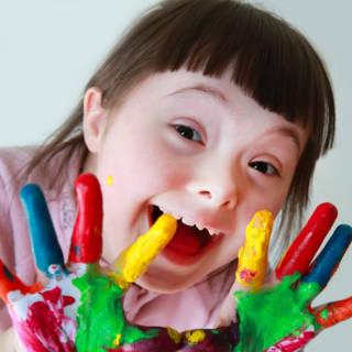 0402   Down Syndrome TN