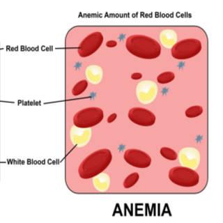 0507 Anemia TN