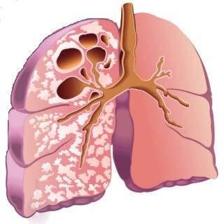 0114   Tuberculosis TN