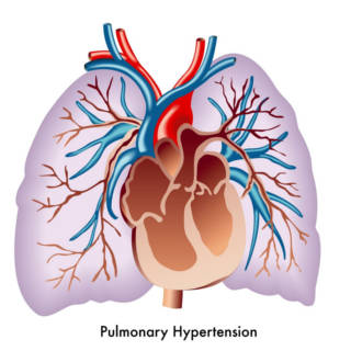 0204   Pulmonary Hypertension TN