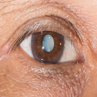 0424 Cataracts TN