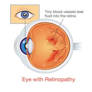 0522 Diabetic Retinopathy TN