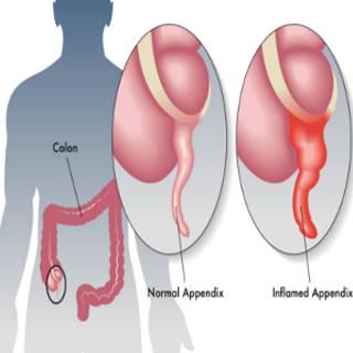 1030 Appendix TN