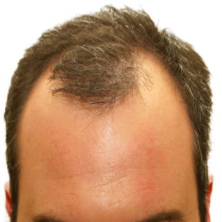 0416   Hair Loss TN